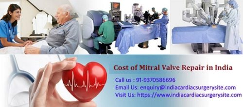 Mitral Valve Repair in India - Copy