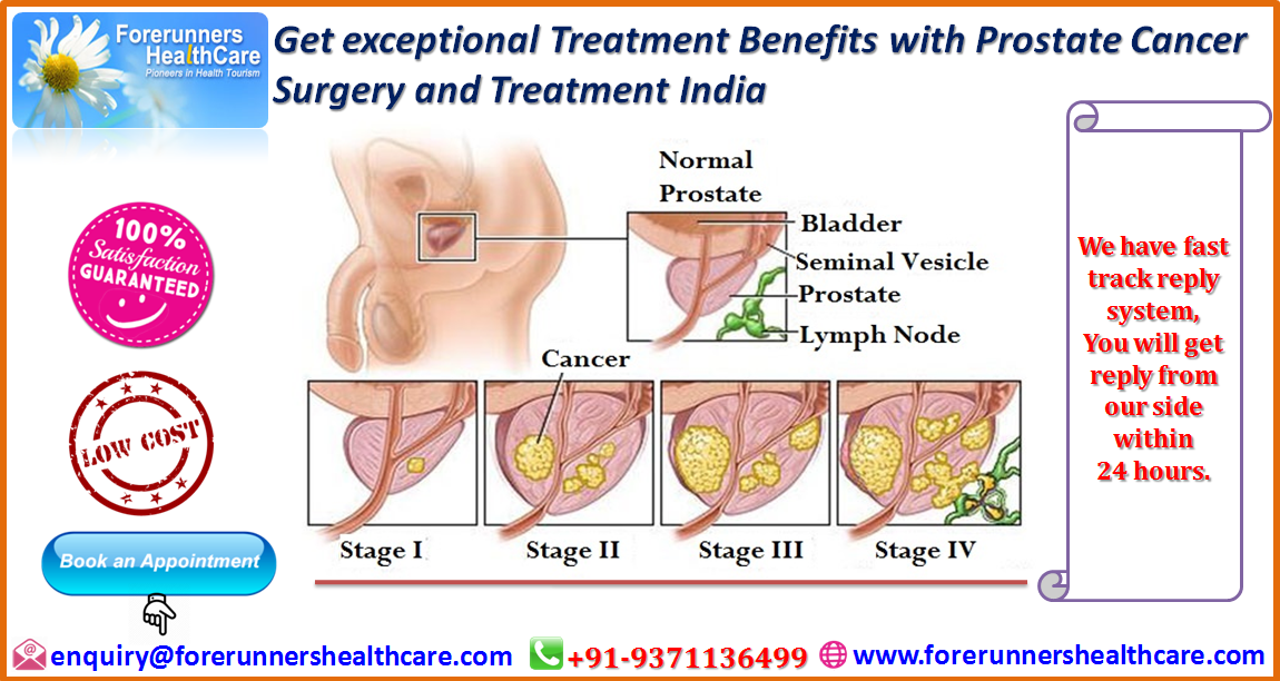 prostate cancer surgery (Eng)